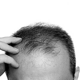 bad hair transplant