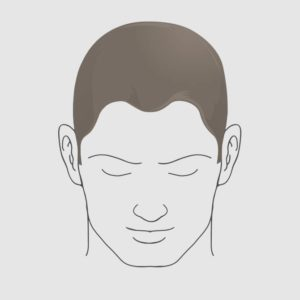 Type 1 hairloss