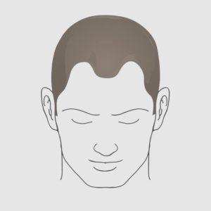 Type 2 hairloss