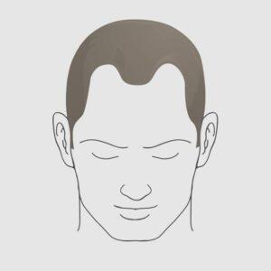Type 3 hairloss