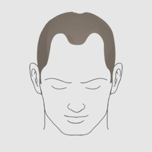 Type 3 vertex hair loss