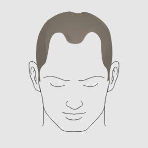 Type 3 vertex hair loss