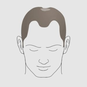 Type 4.2 hairloss