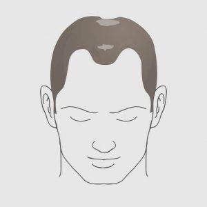 Type 5 hairloss