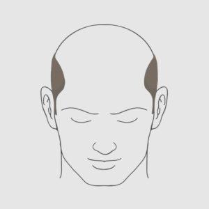 Type 7 hairloss