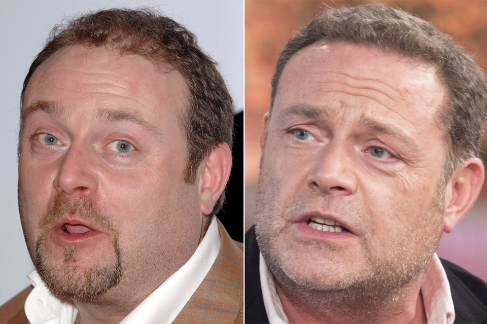 cold feet star John Thomson hair loss