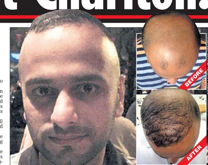 cheap hair transplant abroad