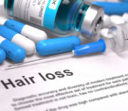 Hair loss medical concept