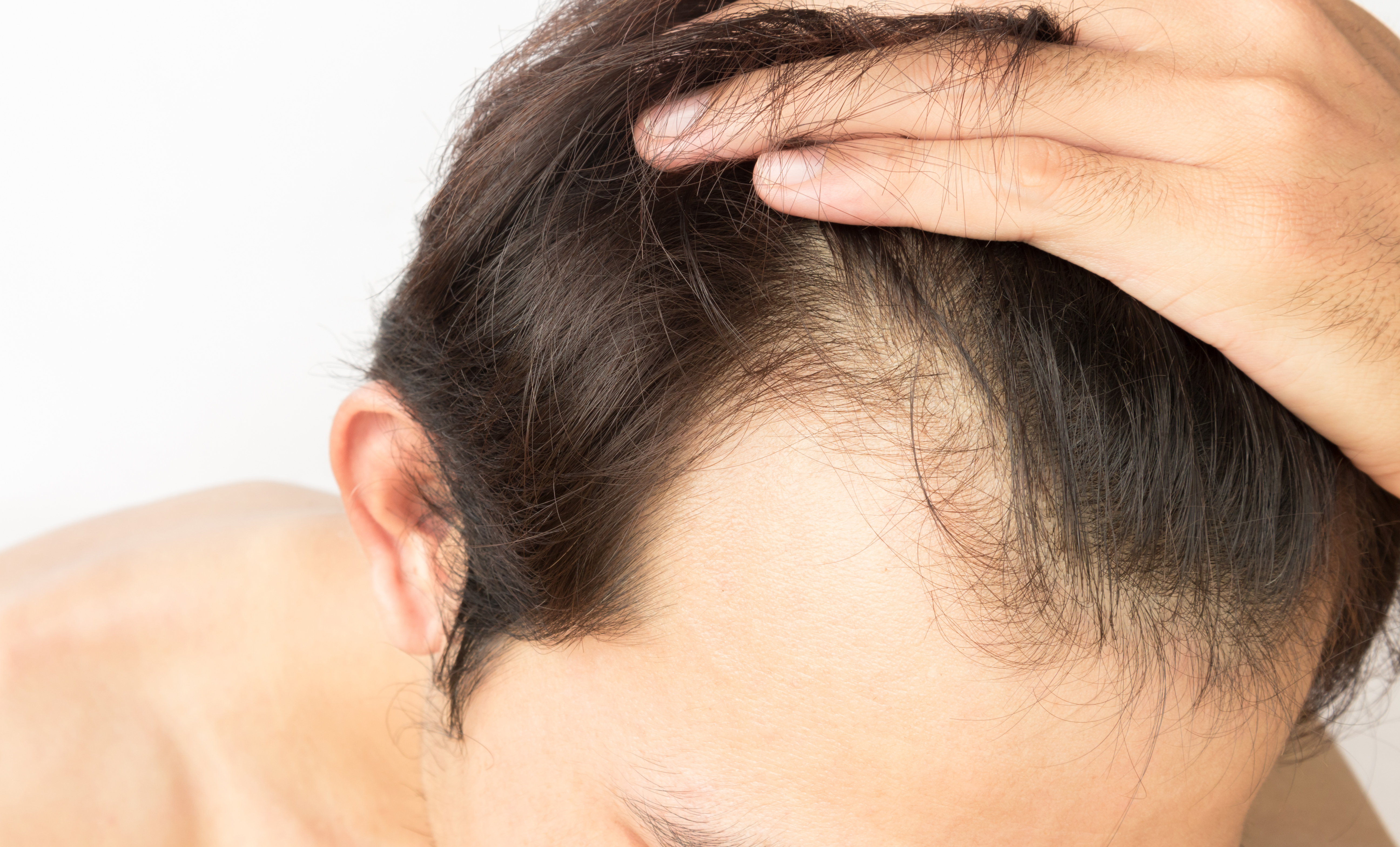 fut or fue hair transplant treatment options at Farjo Hair Institute