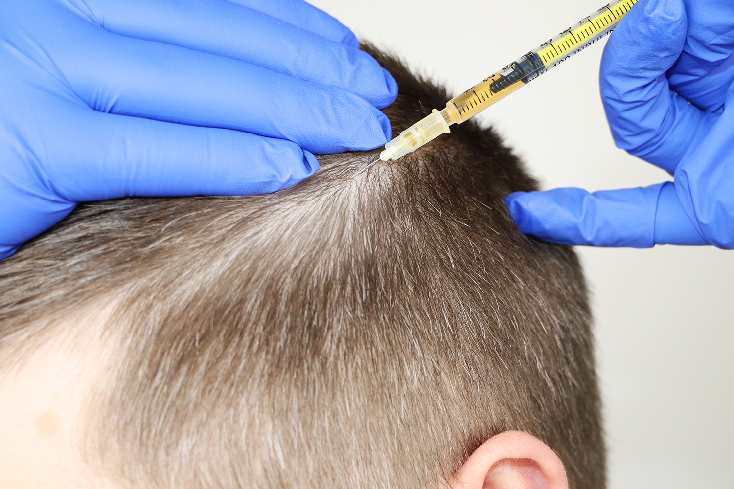 what to expect from your hair transplant