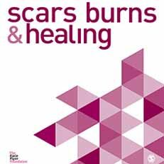 Hair Transplant Surgery in Burn Scars