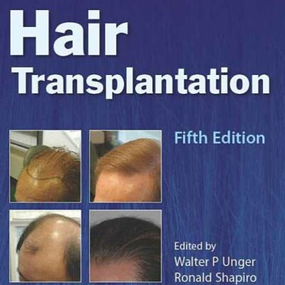 Hair Transplantation in Transgender Patients
