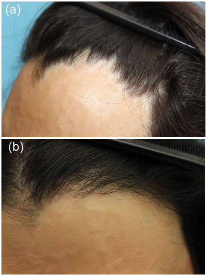 burn scar alopecia examples