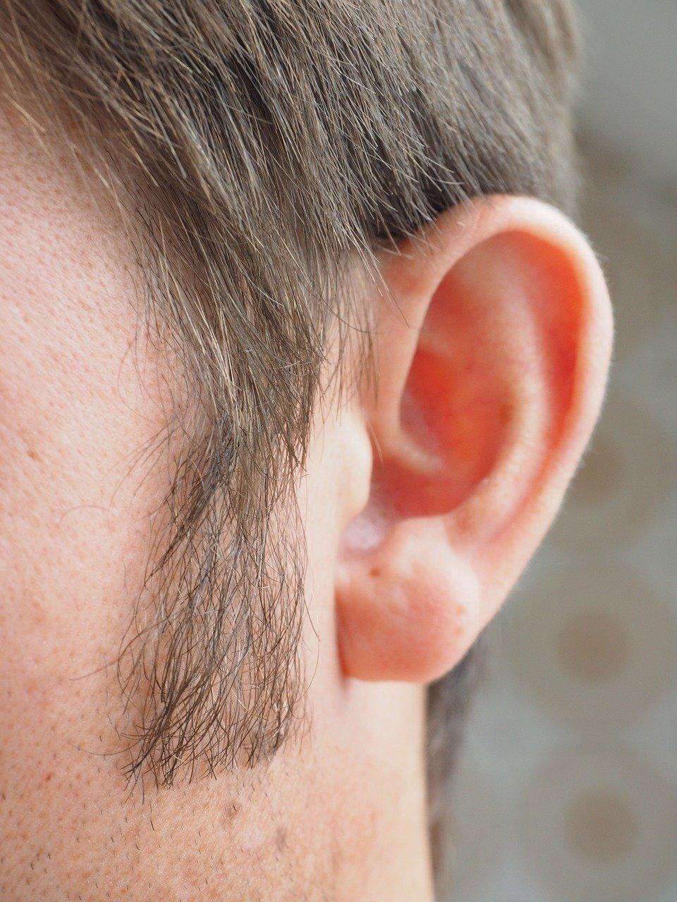 Sideburn Restoration